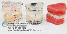 B40-Malaysia-Johor-Batu-Pahat-BP-Family-Care-Dental-Laser-Clinic-Treatment-Surgery-Oral-Health-Hygiene-Dentist-Dentistry-Dokter-Gigi-Penjagaan-Gigi-峇株巴辖-家家牙科医务所-牙