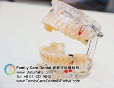 B41-Malaysia-Johor-Batu-Pahat-BP-Family-Care-Dental-Laser-Clinic-Treatment-Surgery-Oral-Health-Hygiene-Dentist-Dentistry-Dokter-Gigi-Penjagaan-Gigi-峇株巴辖-家家牙科医务所-牙
