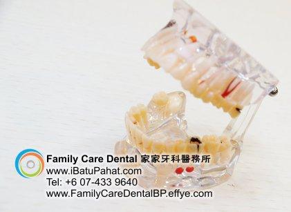 B42-Malaysia-Johor-Batu-Pahat-BP-Family-Care-Dental-Laser-Clinic-Treatment-Surgery-Oral-Health-Hygiene-Dentist-Dentistry-Dokter-Gigi-Penjagaan-Gigi-峇株巴辖-家家牙科医务所-牙