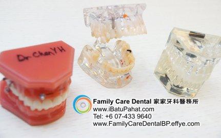 B43-Malaysia-Johor-Batu-Pahat-BP-Family-Care-Dental-Laser-Clinic-Treatment-Surgery-Oral-Health-Hygiene-Dentist-Dentistry-Dokter-Gigi-Penjagaan-Gigi-峇株巴辖-家家牙科医务所-牙