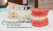 B44-Malaysia-Johor-Batu-Pahat-BP-Family-Care-Dental-Laser-Clinic-Treatment-Surgery-Oral-Health-Hygiene-Dentist-Dentistry-Dokter-Gigi-Penjagaan-Gigi-峇株巴辖-家家牙科医务所-牙