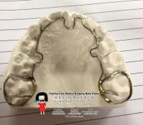 Family Care Dental Surgery Batu Pahat Johor Malaysia Batu Pahat Dentist Oral Health Children Dentistry Dental Clinic Dental Implant Dentures Wisdom Tooth Surgery Extractions A03-03